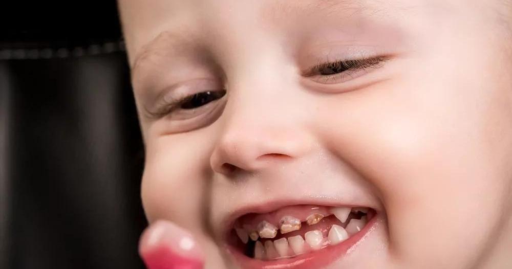 كثرة تناول الطفل للسكريات يزيد فرص تسوس الأسنان
