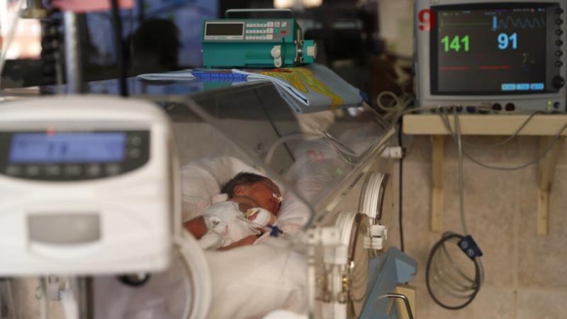 تسجيل إصابات جديدة بـ فيروس RSV للأطفال في أمريكا