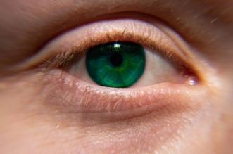 مخاط العين اللزج علامة طبيعية وهذه مهمتها - المواطن