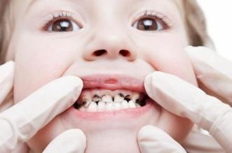 تسوس الأسنان ينتشر أكثر بين أبناء اللاجئين - المواطن