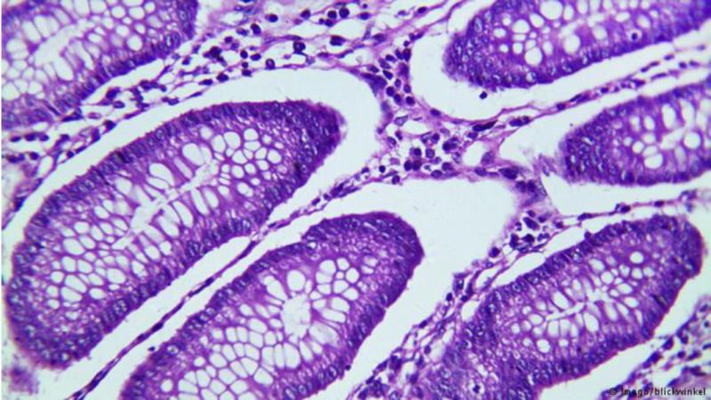 بكتيريا الأمعاء تحارب كورونا