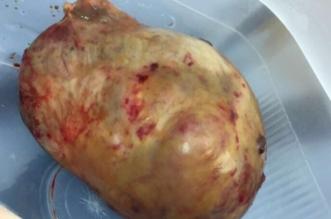استئصال ورم حميد بحجم ١١سم لمريضة بمكة - المواطن