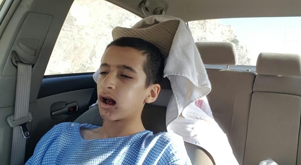 """#عاجل بالصور.. """"المواطن"""" تكشف قصة شاب دخل في غيبوبة بعد خلع ضرسه بالنماص"""