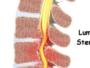 إستراتيجية علاجية جديدة تمنع عدوى إصابات الحبل الشوكي