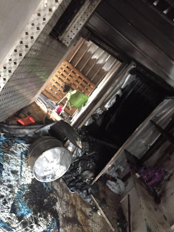 بالصور .. إصابة طفلة يمنية بحروق جراء حادث حريق بحي الصخيرات بالعلا