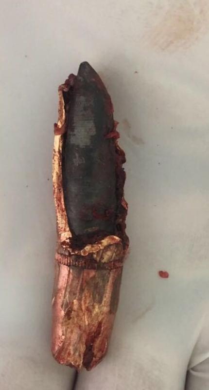 فريق طبي بنجران يستخرج رصاصة حوثية من صدر شاب يمني بعد نقله للمملكة