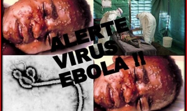 large-بالصورفيروس-ايبولا-القاتل-c8280