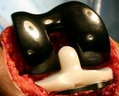 تركيب مفصل للركبة باستخدام تقنية حديثة بمستشفى عسير المركزي